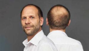 caida de cabello hombre