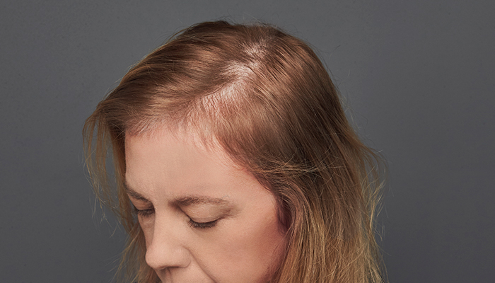 Alopecia difusa mujer