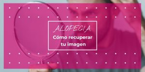 alopecia recupera tu imagen
