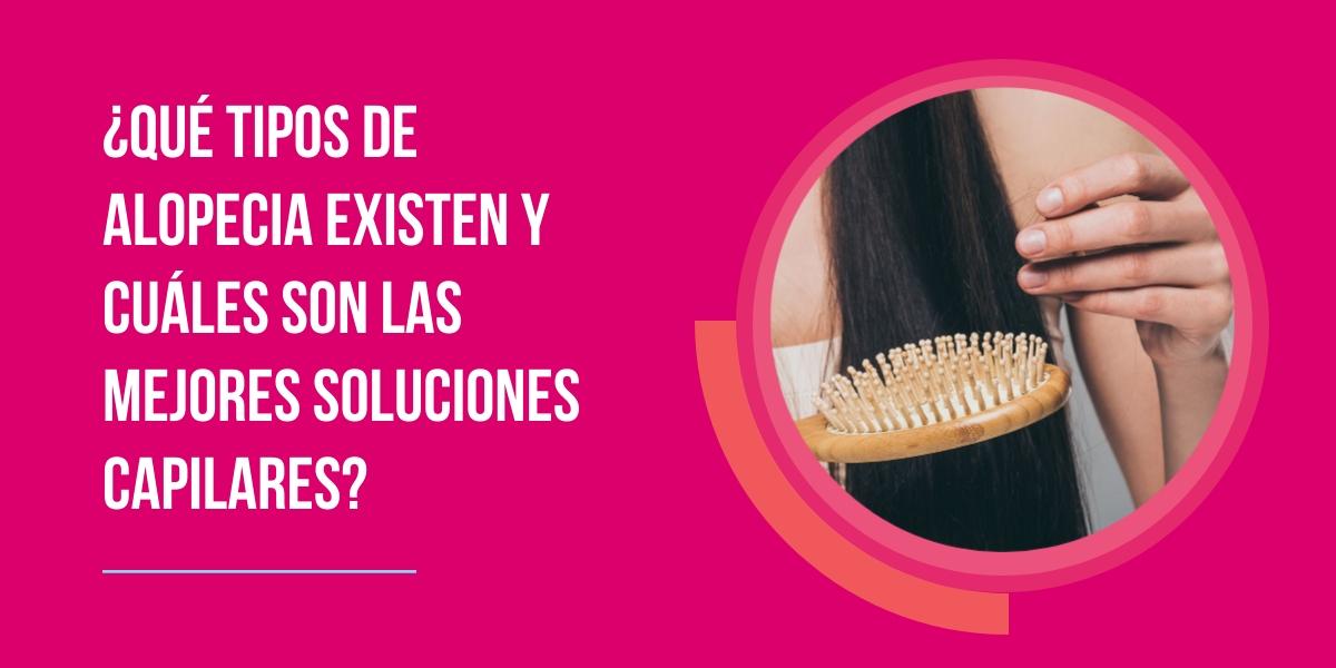 tipos alopecia soluciones