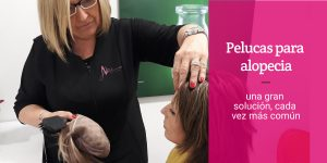 pelucas para alopecias solucion