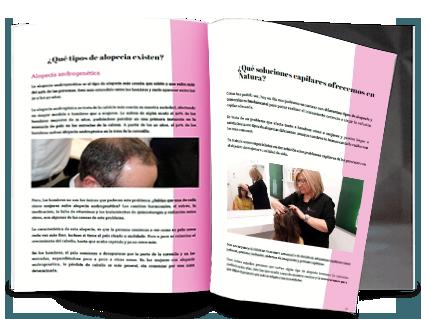 ebook alopecias